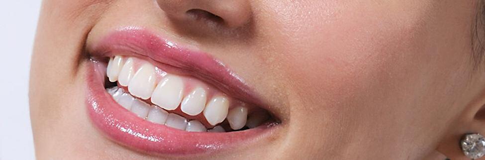 Die unsichtbare Zahnspange